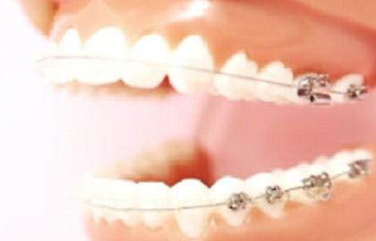 痛みを軽減した最新矯正治療器具を使用しています